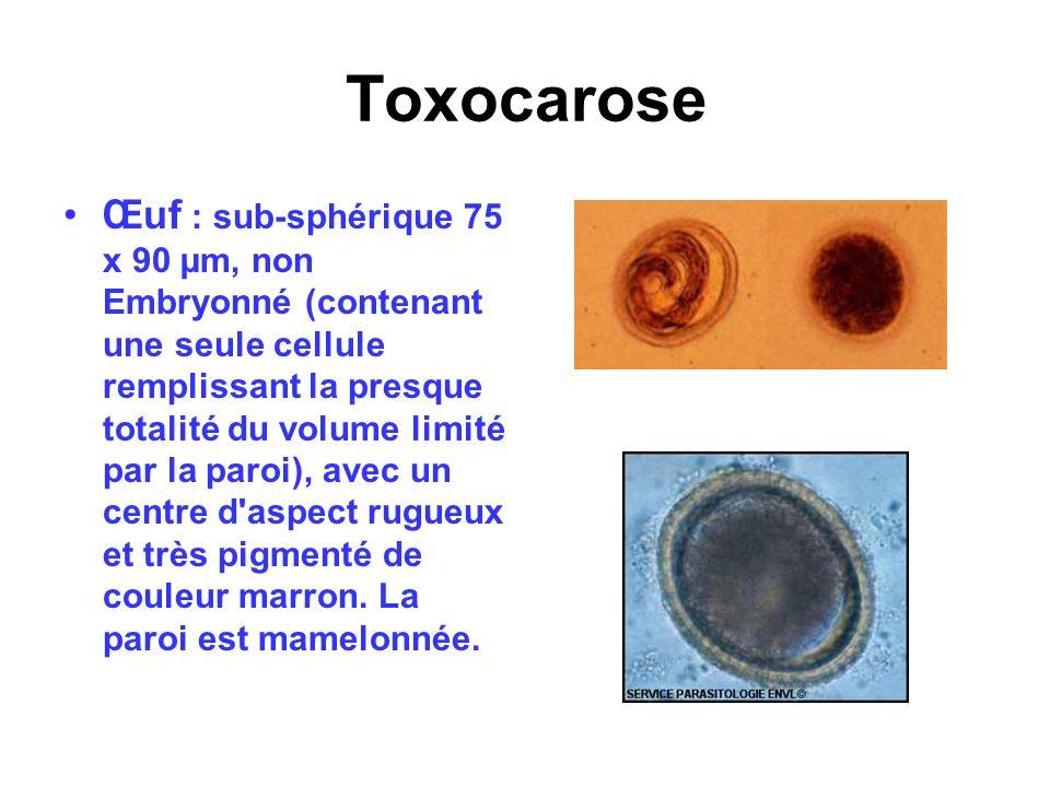 Toxocarose