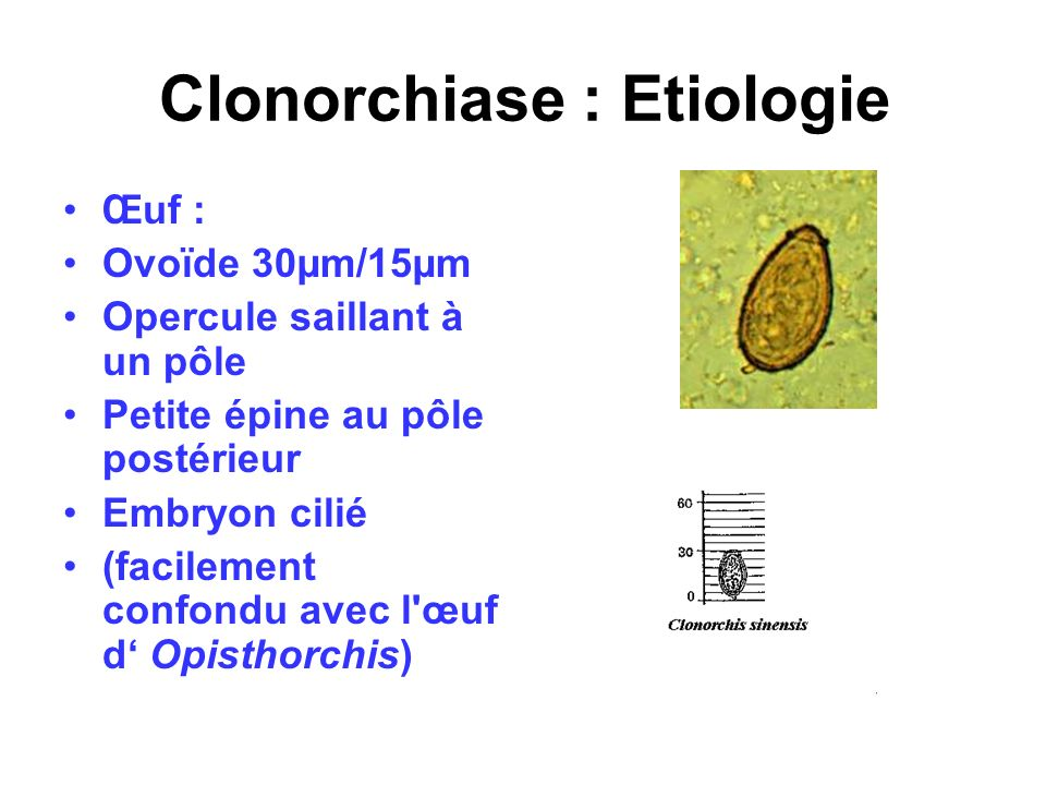 Clonorchiase : Etiologie