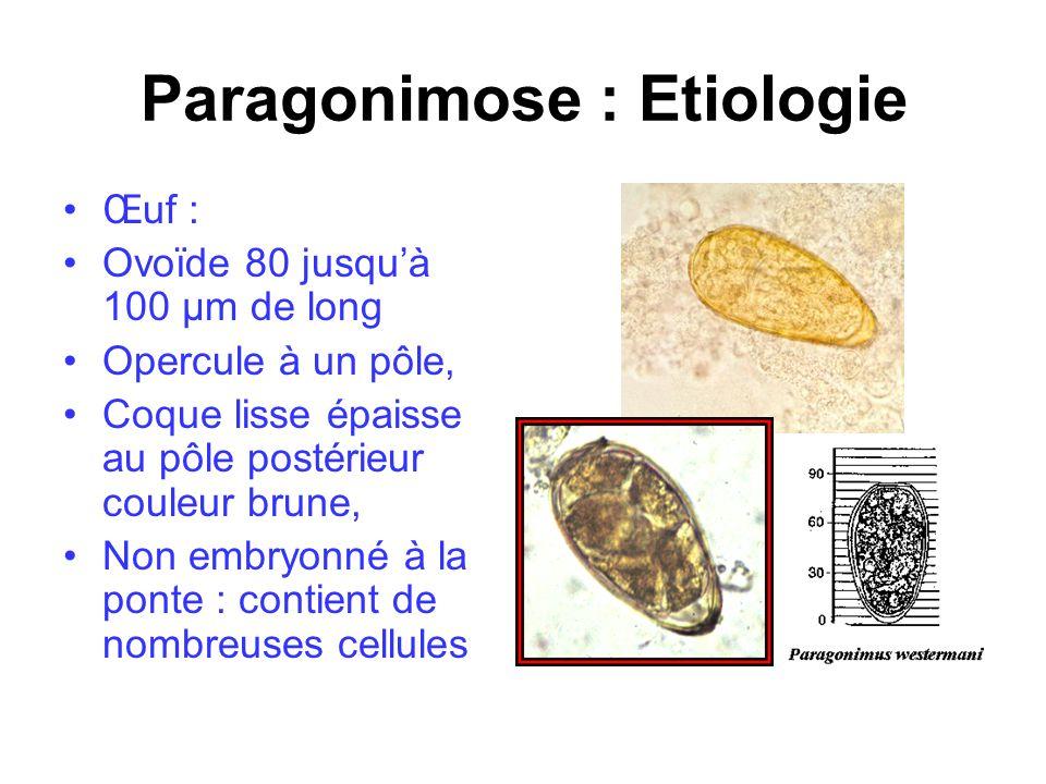Paragonimose : Etiologie