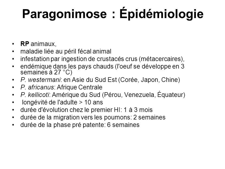 Paragonimose : Épidémiologie