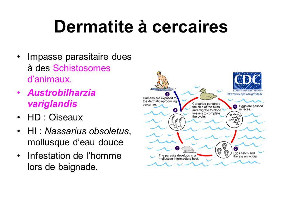 Dermatite à cercaires Impasse parasitaire dues à des Schistosomes d'animaux. Austrobilharzia variglandis.