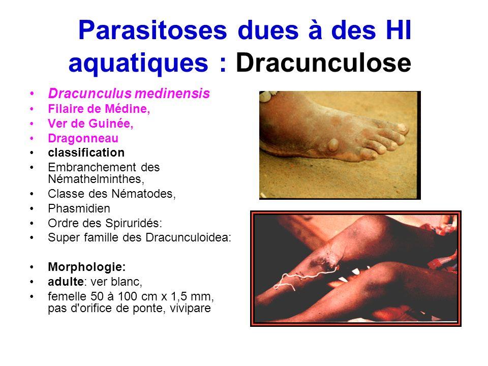 Parasitoses dues à des HI aquatiques : Dracunculose