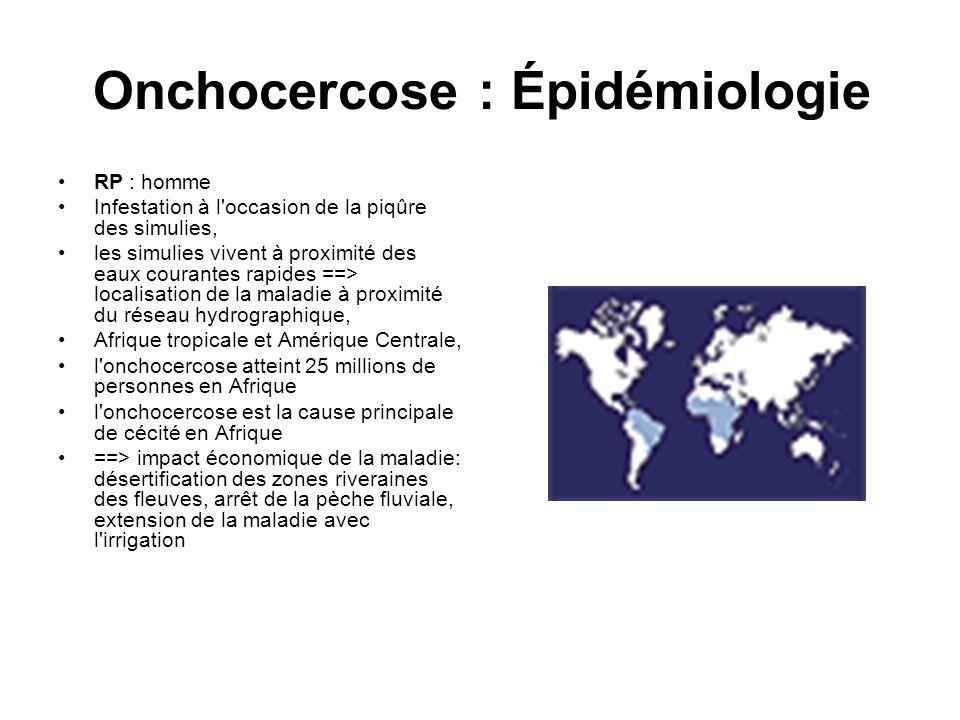 Onchocercose : Épidémiologie