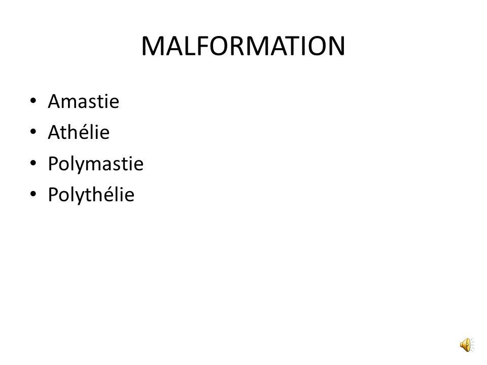 MALFORMATION Amastie Athélie Polymastie Polythélie
