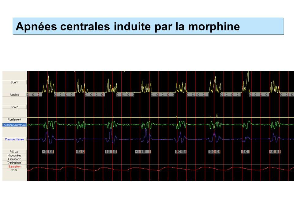 Apnées centrales induite par la morphine