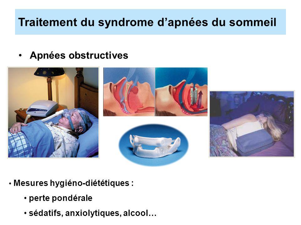 Traitement du syndrome d'apnées du sommeil