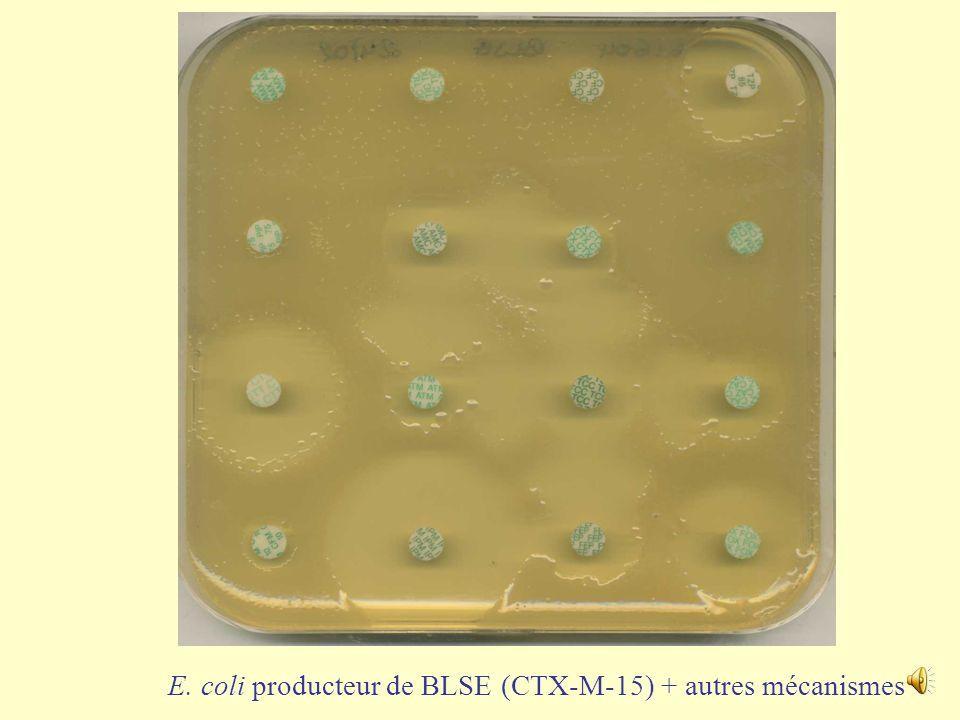 E. coli producteur de BLSE (CTX-M-15) + autres mécanismes