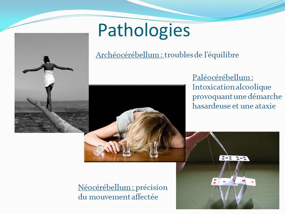 Pathologies Archéocérébellum : troubles de l'équilibre