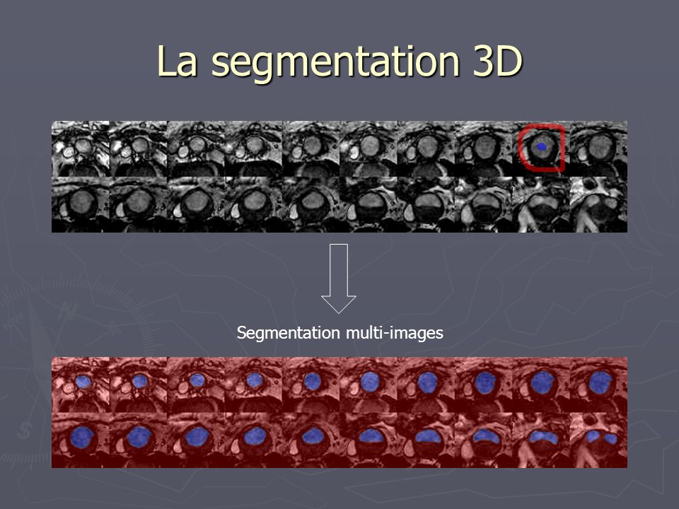La segmentation 3D Segmentation multi-images