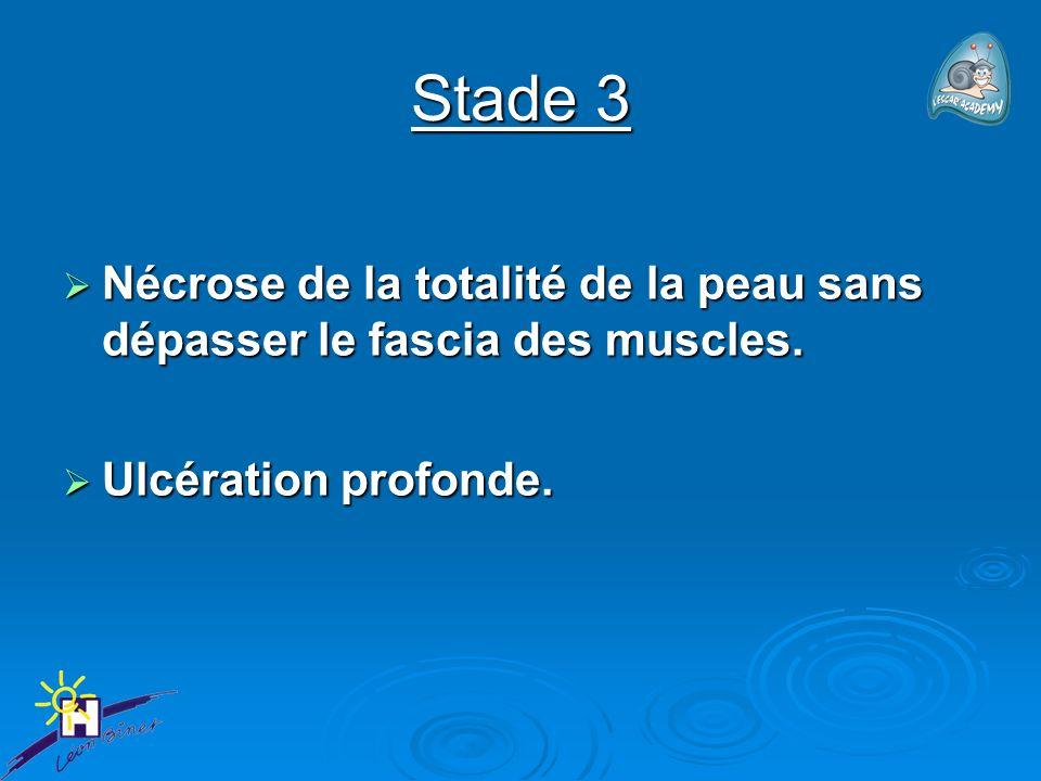 Stade 3 Nécrose de la totalité de la peau sans dépasser le fascia des muscles.