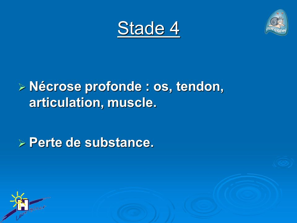 Stade 4 Nécrose profonde : os, tendon, articulation, muscle.