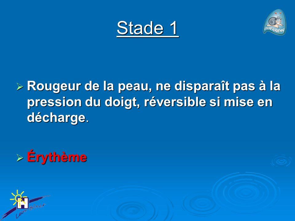 Stade 1 Rougeur de la peau, ne disparaît pas à la pression du doigt, réversible si mise en décharge.
