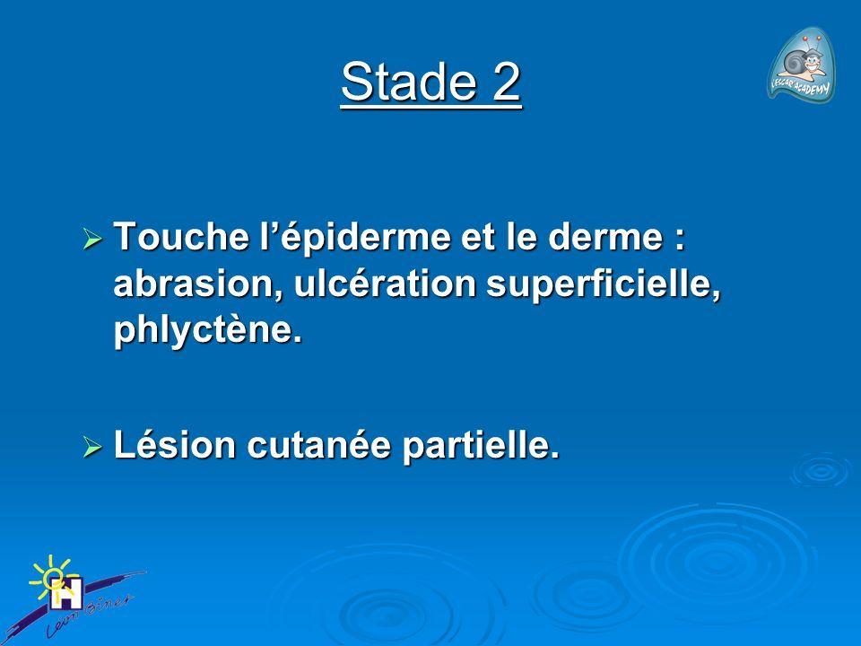 Stade 2 Touche l'épiderme et le derme : abrasion, ulcération superficielle, phlyctène.