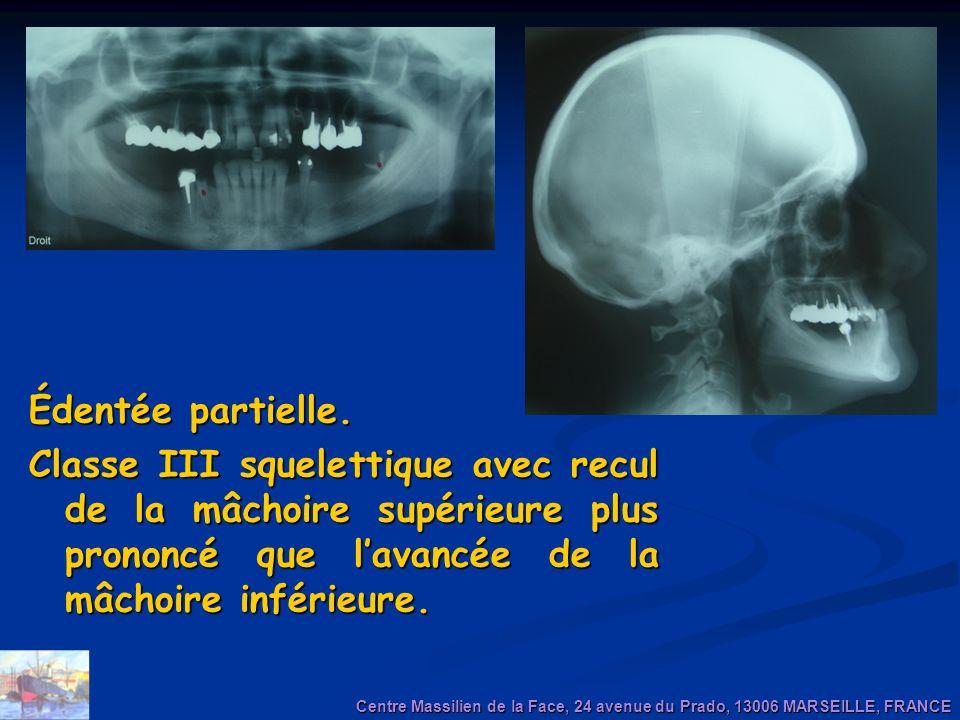 Édentée partielle. Classe III squelettique avec recul de la mâchoire supérieure plus prononcé que l'avancée de la mâchoire inférieure.