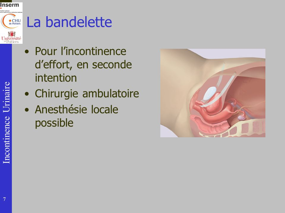 La bandelette Pour l'incontinence d'effort, en seconde intention