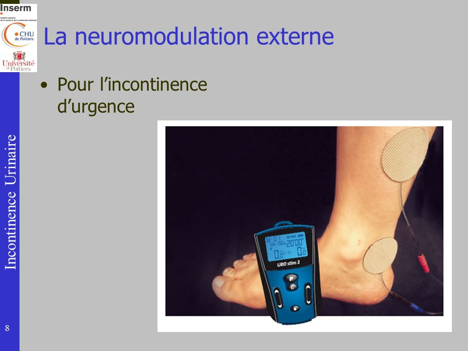 La neuromodulation externe