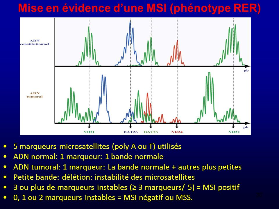 Mise en évidence d'une MSI (phénotype RER)
