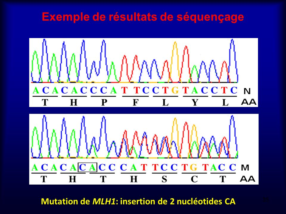 Exemple de résultats de séquençage