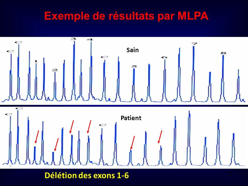 Exemple de résultats par MLPA