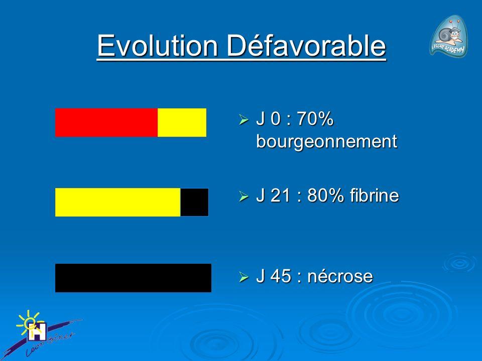 Evolution Défavorable