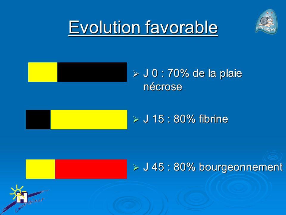 Evolution favorable J 0 : 70% de la plaie nécrose J 15 : 80% fibrine