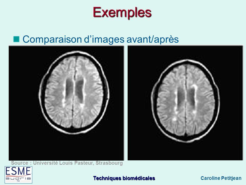 Exemples Comparaison d'images avant/après