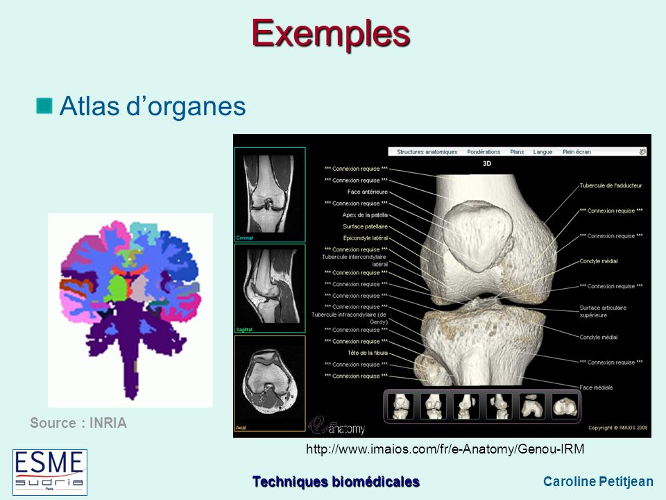 Exemples Atlas d'organes Source : INRIA
