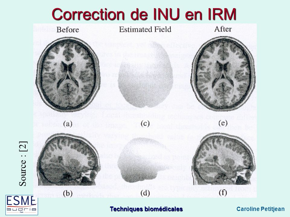 Correction de INU en IRM