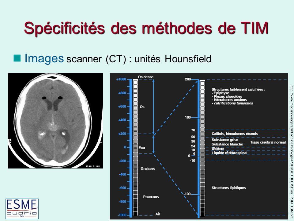 Spécificités des méthodes de TIM
