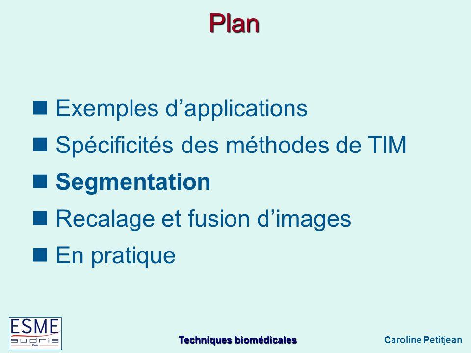 Plan Exemples d'applications Spécificités des méthodes de TIM