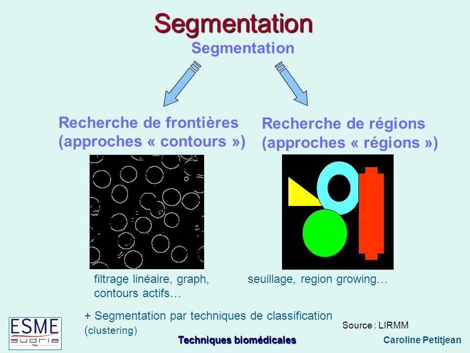 Segmentation Segmentation Recherche de frontières Recherche de régions