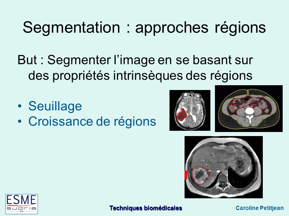 Segmentation : approches régions
