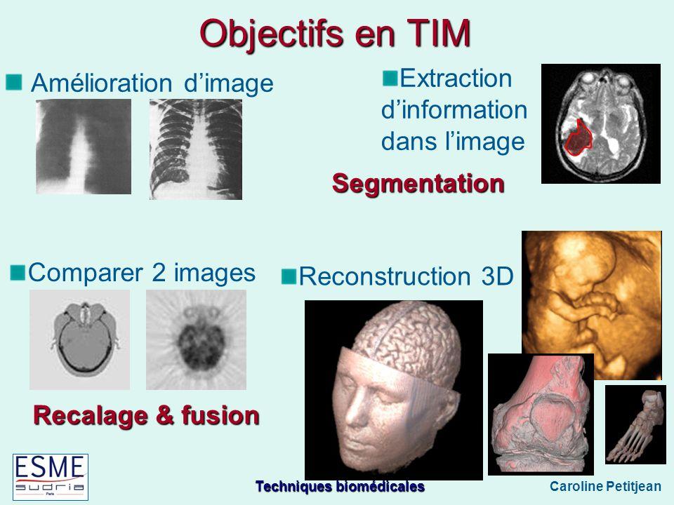 Objectifs en TIM Amélioration d'image Extraction d'information