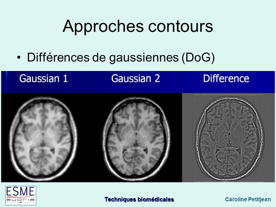 Approches contours Différences de gaussiennes (DoG)