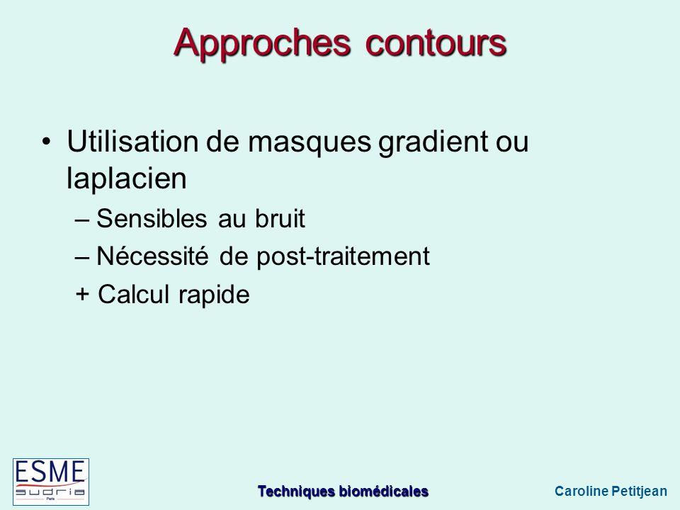 Approches contours Utilisation de masques gradient ou laplacien