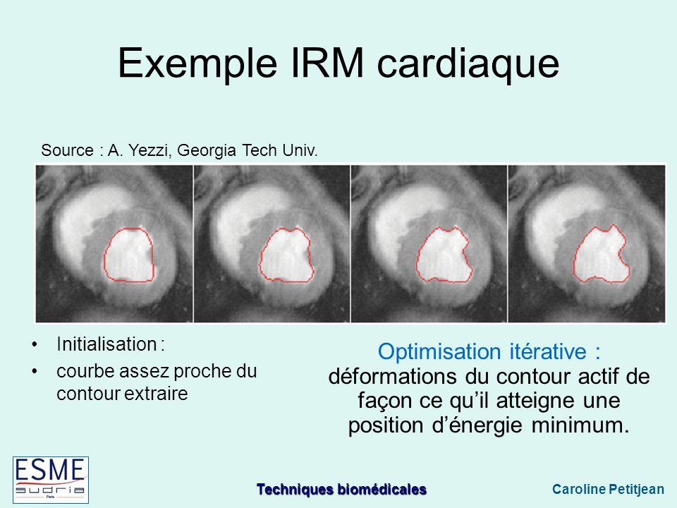 Exemple IRM cardiaque Source : A. Yezzi, Georgia Tech Univ. Initialisation : courbe assez proche du contour extraire.