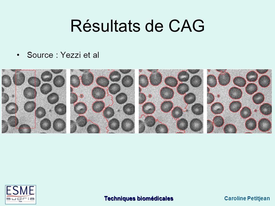 Résultats de CAG Source : Yezzi et al