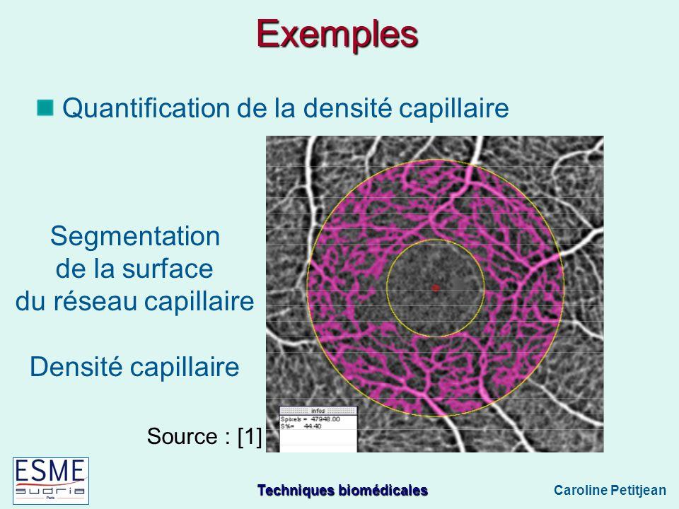 Exemples Quantification de la densité capillaire Segmentation