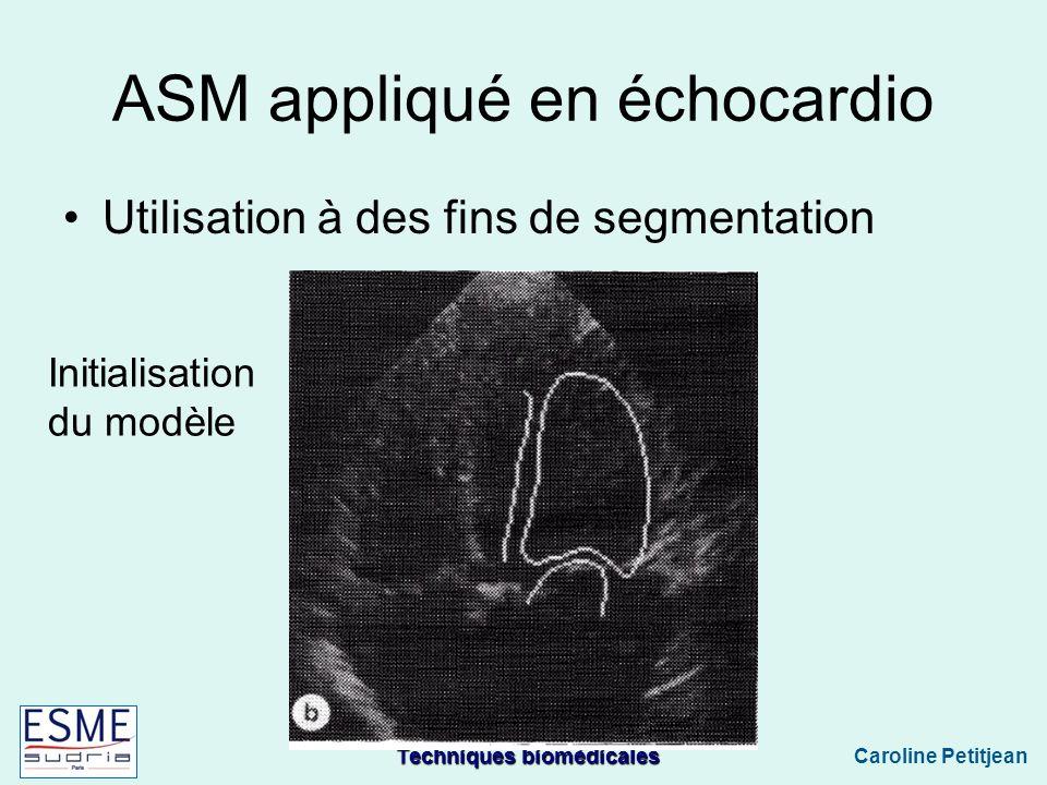ASM appliqué en échocardio