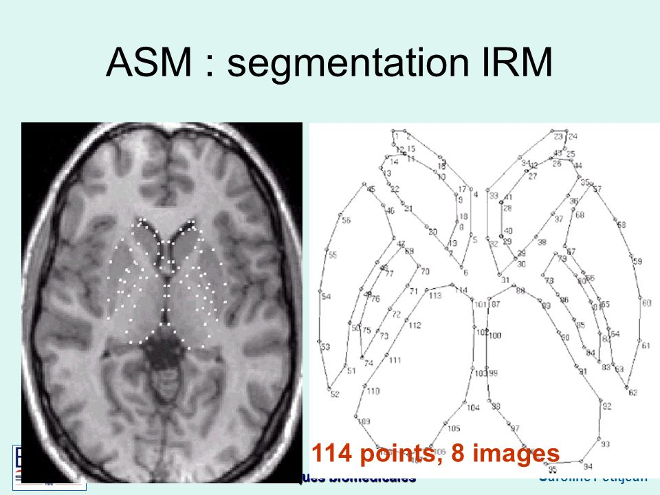 ASM : segmentation IRM 114 points, 8 images