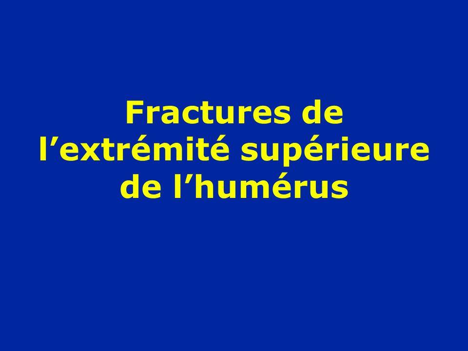 Fractures de l'extrémité supérieure de l'humérus