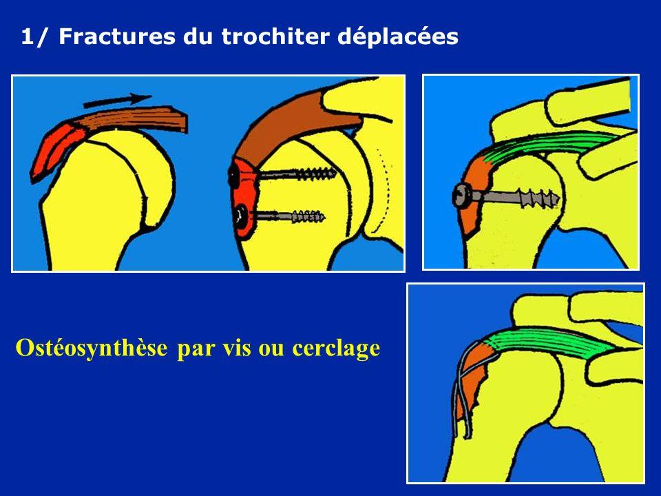 Ostéosynthèse par vis ou cerclage
