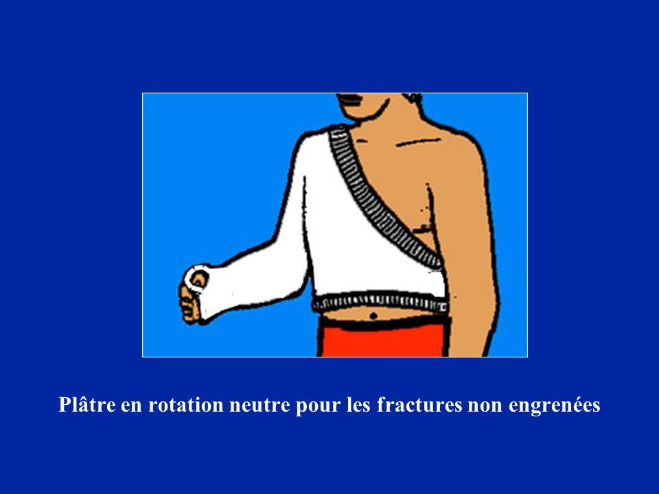 Plâtre en rotation neutre pour les fractures non engrenées
