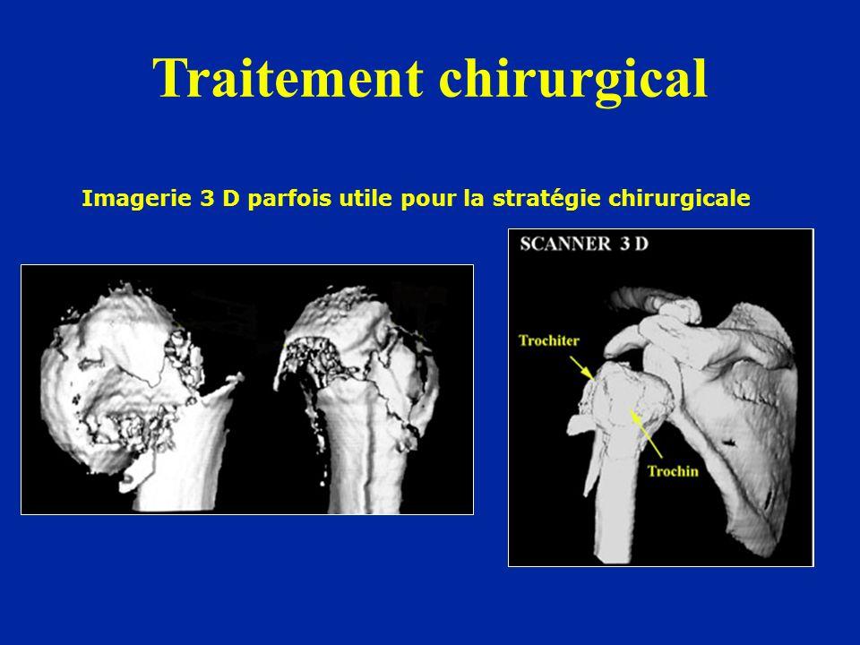 Imagerie 3 D parfois utile pour la stratégie chirurgicale