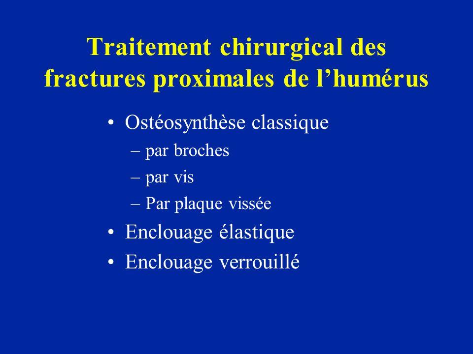 Traitement chirurgical des fractures proximales de l'humérus