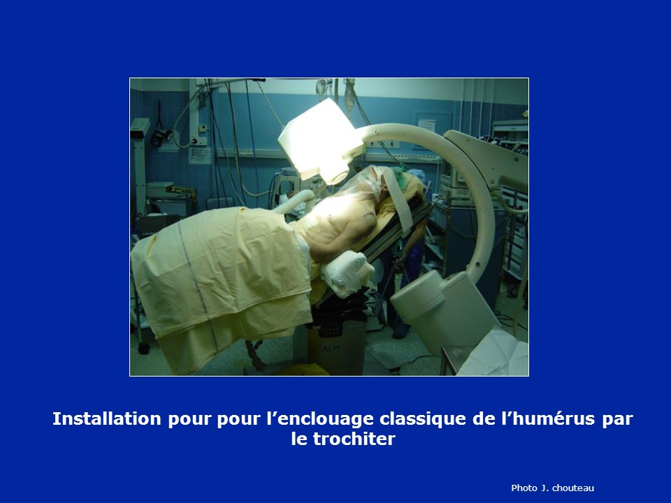 Installation pour pour l'enclouage classique de l'humérus par le trochiter
