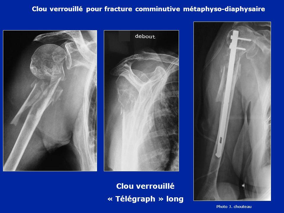 Clou verrouillé pour fracture comminutive métaphyso-diaphysaire