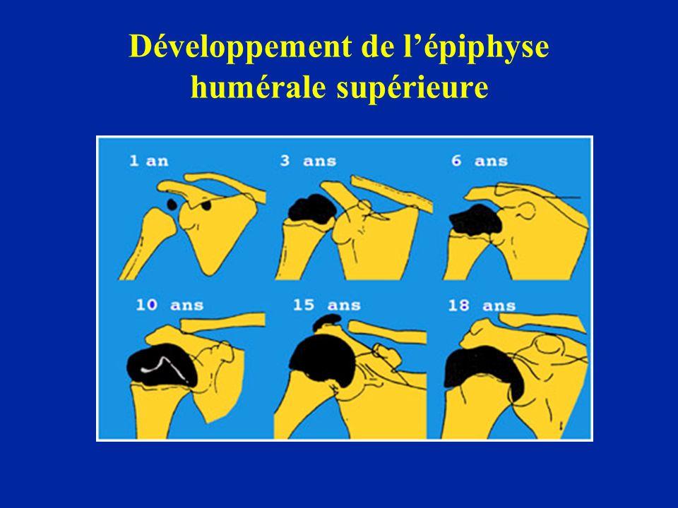 Développement de l'épiphyse humérale supérieure