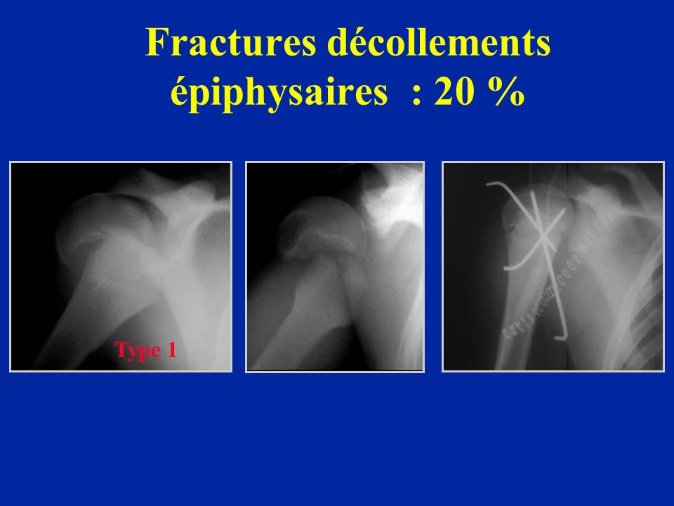 Fractures décollements épiphysaires : 20 %