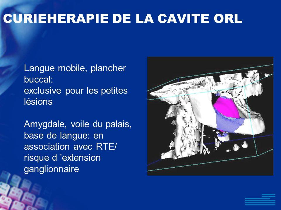 CURIEHERAPIE DE LA CAVITE ORL